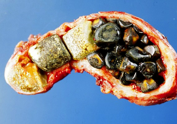 A képen egy nyitott epehólyagot láthatsz - benne számos epekővel. A sárgák a koleszterinnek köszönhetik a színűket, a zöldek valószínűleg az epepigmenteknek. Az elhízás és a zsíros ételek rendszeres fogyasztása növeli a betegség kialakulásának rizikóját. Epepanaszok esetén számos ételt kerülni kell - erről korábbi cikkünkben olvashatsz.
