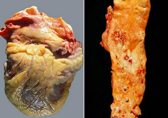 Az elhízás szoros összefüggésben áll a szív- és érrendszeri betegségek kialakulásával. Eredményeképpen idővel perikardiális - vagy szív körüli - zsír alakul, de ezen kívül a jobb oldali képen látható érelmeszesedéshez is köze van. A keringési rendszert érintő megbetegedések napjainkban az első számú halálos betegségnek számítanak Magyarországon.