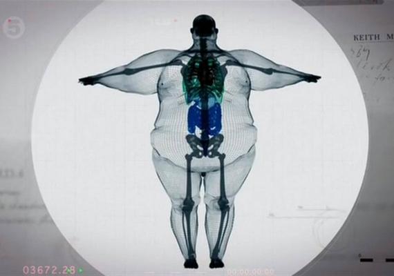 Így néz ki röntgenen a kóros elhízás. A felvételen egy 450 kilogrammos férfi, Keith Martin látható.