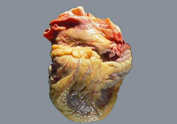 Az elhízás eredményeképpen idővel perikardiális - vagy szív körüli - zsír is kialakul a szervezetben. Ennek a zsírrétegnek pedig egyenes következménye a szívkoszorúér-betegség, az érelmeszesedés és a szívinfarktus. Hasonlítsd össze az egészséges és a beteg szívet!