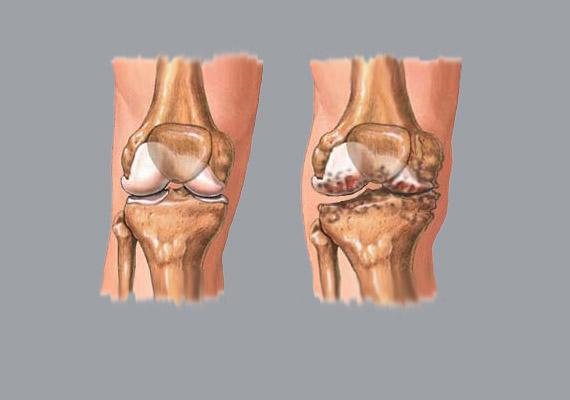 Nem csupán a csípő-, de a térdízületet is megterheli a jelentős túlsúly. Meglazulhatnak a térdszalagok, valamint - ahogy a jobb oldali képen is látható - porckopás alakulhat ki, amely erős fájdalommal járhat, és protézis beültetését teszi szükségessé.