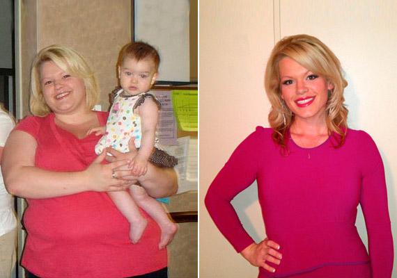 Csodadiéták helyett az életmódváltás hozza meg a várt sikert. Mindezeknek köszönhetően Ashley Donahoo 62 kilótól szabadult meg: jelenlegi súlya 74 kiló. A fiatal anyuka azt sem titkolja, hogy ekkora mértékű fogyás esetében bizony szükség van plasztikai műtétre is, hiszen a bőr nem tudja elég rugalmasan követni a változást. Tudj meg többet módszeréről!