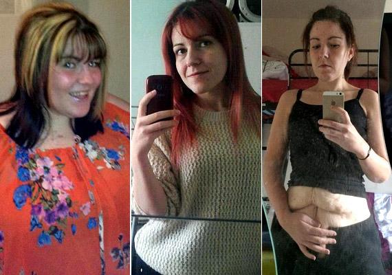 Kelly Urey mindössze másfél év alatt adott le 120 kiló súlyfelesleget gyomorgyűrű segítségével. Sajnos azonban bőre nem tudta követni a változást. Korábbi cikkünkből többet is megtudhatsz róla!