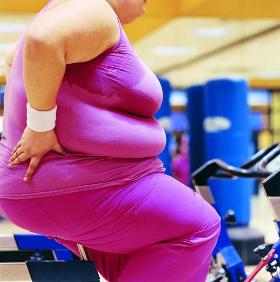 35 vagy akár 40 feletti értékek esetében az elhízás már krónikus. A nagy túlsúly miatt a szervezet folyamatosan jelentős igénybevételnek van kitéve, így nem csak a fent említett betegségek jelentenek fokozott veszélyt. Az ízületek és a csontok könnyebben sérülnek a nagy terhelés alatt, ezért nem ajánlottak az intenzív sportok. Nehezebbé válik a légzés, sőt, az alvási apnoe is veszélyt jelent, melynek során a beteg rövid időre álmában egyáltalán nem vesz levegőt. 165 centiméteres magasság esetén ez a BMI minimum 96 kilóval érhető el.
