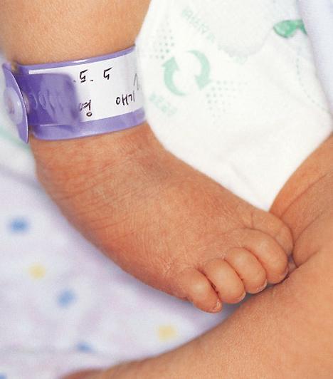 Dongaláb  A láb ízületei rendellenes tartásúak, a talpak befelé állnak. A betegség előfordulása 1 ezrelék körüli, főként fiúkat érint. Oka genetikai, ám a méhen belüli tartási rendellenességek is szerepet játszhatnak kialakulásában. Gipszrögzítéssel, esetleg műtéttel a probléma kezelhető.