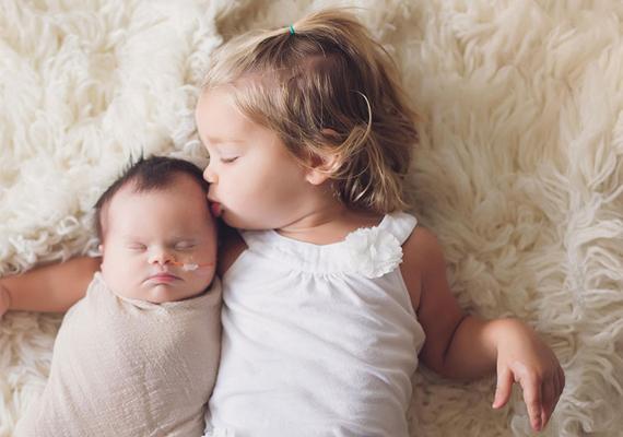 A pici nővérkéje a szülőkkel együtt szeretettel veszi körül a kis Abit, ameddig csak köztük lehet.