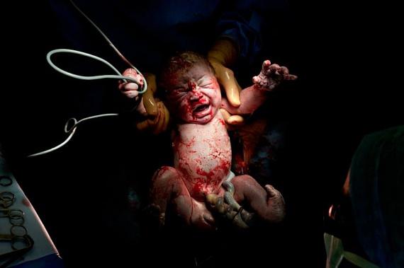Egy igazán fantasztikus fotósorozat egyik képével invitálunk hasonló témájú cikkünk megnézésére: kattints ide, és nézd meg Christian Berthelot képeit újszülöttek első másodperceiről.