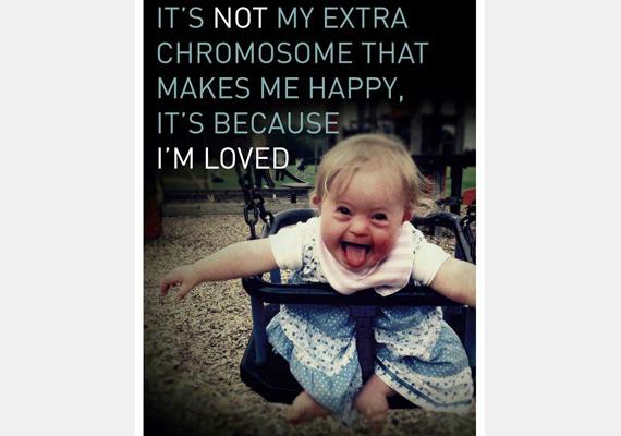 Nem a plusz egy kromoszómám tesz boldoggá, hanem az, hogy szeretnek.