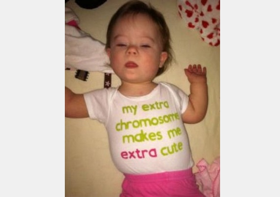 Az extra kromoszómám extra cukivá tesz!