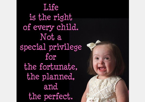 Az élethez minden gyereknek joga van. Nem a szerencsés, tervezett, tökéletes gyerekek előjoga.