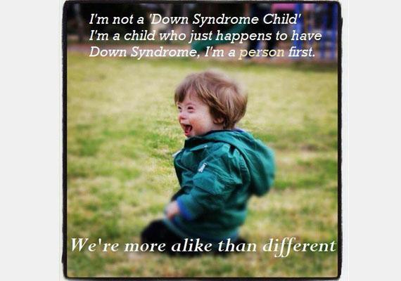 Én nem Down-szindrómás gyerek vagyok, hanem egy gyerek, akinek történetesen Down-szindrómája van. Elsősorban személy vagyok. Sokkal inkább hasonlítunk, mint amennyire különbözünk.