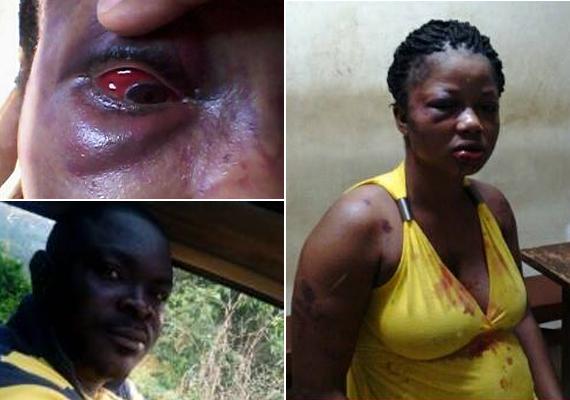 Florence Sabo Campbell a Facebook-oldalára töltötte fel a fotókat egy, a férjéhez, James Alphonso Campbellhez címzett, születésnapi köszöntőbe bújtatott leleplező szöveg kíséretében. A képek azután készültek, hogy férje megverte őt. Arca feldagadt, szeme bevérzett. Posztjával az volt a célja, hogy nyilvánosságra hozza, James mit tett vele. Találkozunk a bíróságon - zárta sorait az azóta már világra jött kislányát nevelő áldozat.