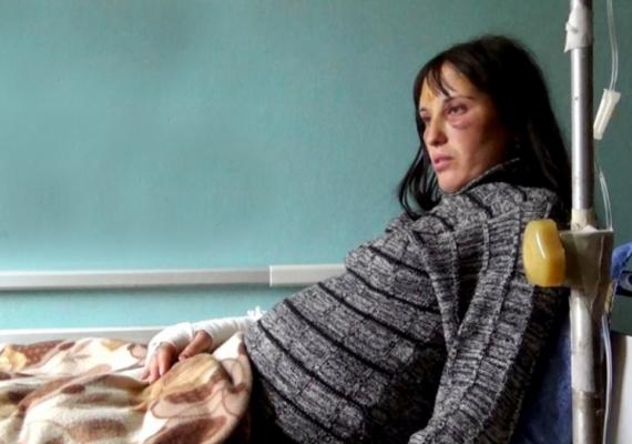 Első férje is megverte a grúziai Marina Abesadzét, akinek következő párja nemhogy nem váltotta be a hozzá fűzött reményeket, de évekig bántalmazta is a nőt, akkor is, amikor az várandós volt. Karja eltört, és arcát is csúnya zúzódások borították a támadás után, amikor a kép készült. A nő lánya párja családjához költözött az erőszakos férj elől.