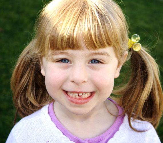 Négyszögletes arc. Gyermeked kiváló technikai érzékkel rendelkezik, így főként műszaki vagy informatikai területen válhat sikeressé.