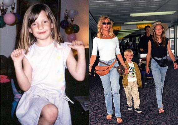 A szexi Goldie Hawn lányaként valószínűleg nem lehetett könnyű tinédzserkora Kate Hudsonnak, mert biztos, hogy mindenki az anyja szépségét kereste benne. Bár csúnyának sosem volt mondható, kislányként bizony bőven belefért az átlagos kategóriába, így feltehetően még a szülei sem merték azt gondolni, hogy felnőttként a legnépszerűbb romantikus filmek gyönyörű főhősnőjeként tündököl majd.