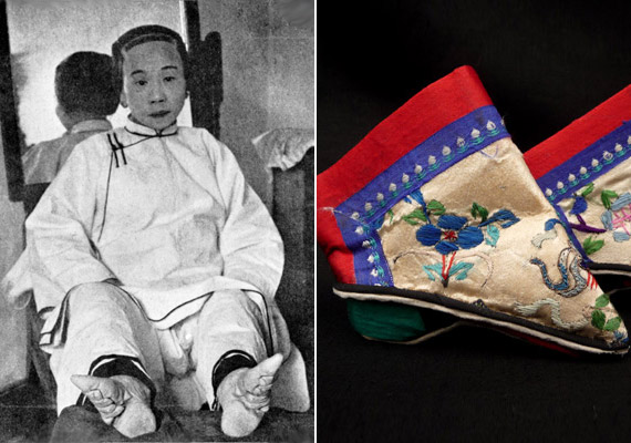 A lótuszlábak hosszú évszázadokon át a szépség és az erotika megtestesítői voltak Kínában. Ma már a kínai törvények is tiltják a kislányok lábának megnyomorítását, ami vérkeringési problémákhoz, erősen korlátozott mozgáshoz és olykor üszkösödéshez vezethetett.