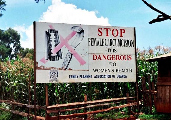 A kislányok klitoriszának kivágása a mai napig bevett szokás a harmadik világ országaiban, többek között Etiópiában, Egyiptomban, Szudánban, Szomáliában, Nyugat-Ázsiában, Indiában vagy a Maláj-szigeteken. Célja a nők szexuális élvezetektől való megfosztása. Az Ugandában készült felvételen egy, a női nemi szervek csonkítása elleni kampány plakátja látható. Tudj meg többet a szokásról!