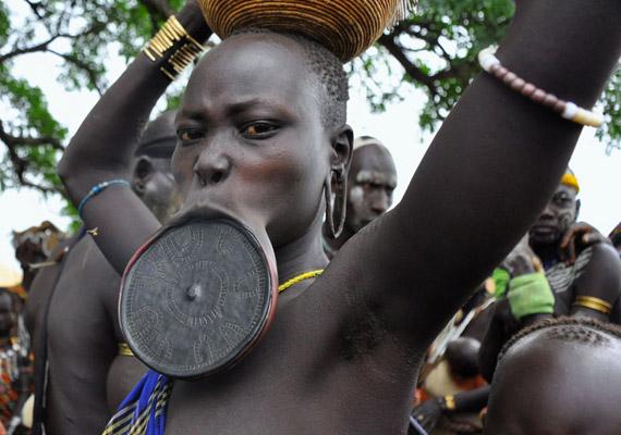 Az etiópiai mursi törzsnél hagyománya van annak, hogy a kislányok ajkait nyújtják, így idővel tányérszájuk lesz. Az eljárás célja kezdetben az volt, hogy elrettentsék a rabszolga-kereskedőket, ma azonban már a szépség jelképeként tartják számon a tányérszájat.