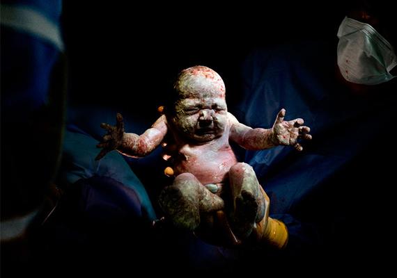 Romane, 8 másodperccel születése után.