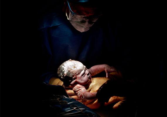 Chloé, 11 másodperccel születése után.