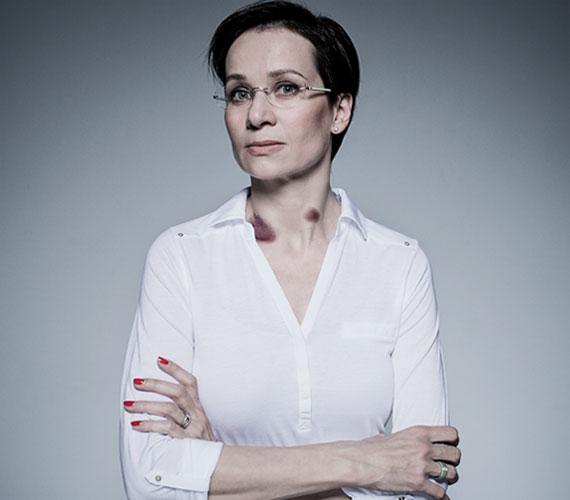 Bakos Piroska többek között az énekesnő Odettel, a színésznő Farkas Franciskával és a divattervező Szegedi Katával vállalta, hogy a Nekem is fáj című kampány arcai lesznek.