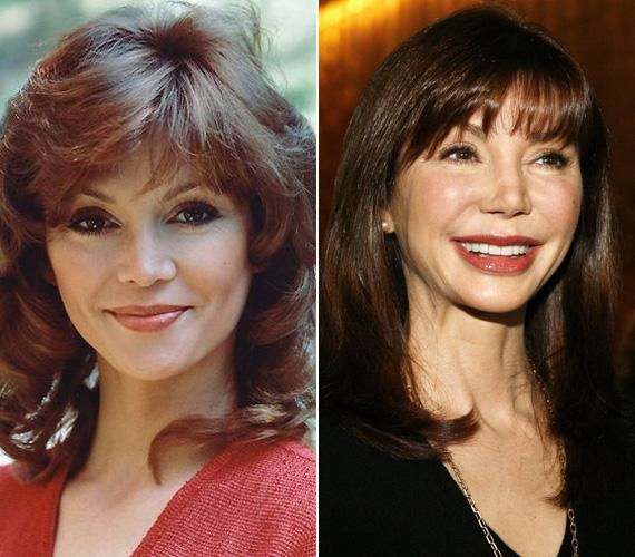 A hetvenes években a csinos, de sokszor problémákkal küzdő Pamela Ewing volt a kedvence. Victoria Principal a rengeteg plasztikai műtét miatt mára elvesztette minden báját, arca egy viaszbabáéra emlékeztet.