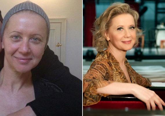 A Vígszínház 54 éves igazgatónője, Eszenyi Enikő színésznő is többször megmutatta már közösségi oldalán festetlen arcát. Legutóbb egy bikinis képet is posztolt magáról.