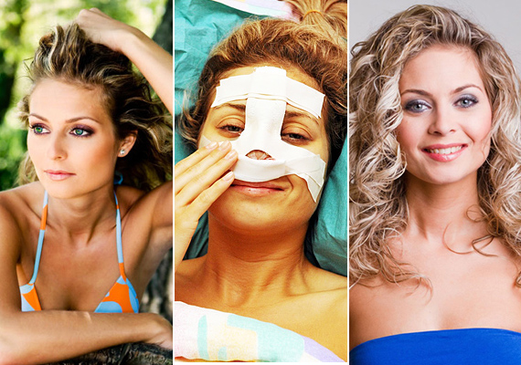 Bálizs Anett, a Jóban Rosszban Fanni nővére az orrát műttette meg. A színésznőt zavarta, hogy szemből és profilból egészen más karakterű az orra, ezért döntött a beavatkozás mellett.