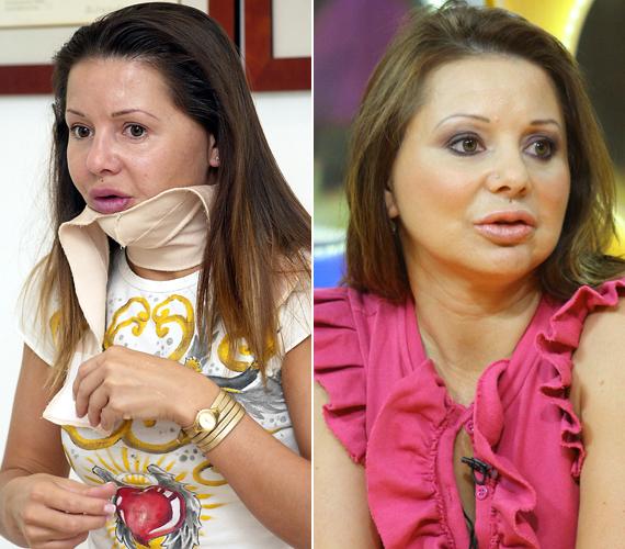 Judy nem jókedvéből szabatta át magát. Az énekesnő még 1998-ban szenvedett autóbalesetet, amiben teljesen összeroncsolódott az arca. Azóta már több mint 30 műtéten esett át.