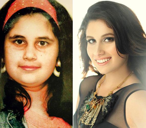 Radics Gigi nagy átalakuláson ment keresztül: a Facebookra töltötte fel a bal oldali fotót, ami jól mutatja, hogy nyolcéves kislányként még duci volt. A jobb oldali kép két hónapja készült.