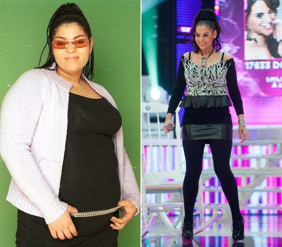 Mohamed Fatima 70 kiló feleslegtől szabadult meg gyomorgyűrű segítségével.