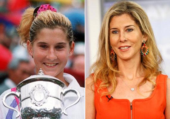 A húszas éveiben a világ egyik legismertebb női teniszezője volt. A sztárt ma már szinte már csak akkor ismerni fel, ha fiatalkori fotóját is megmutatjuk.