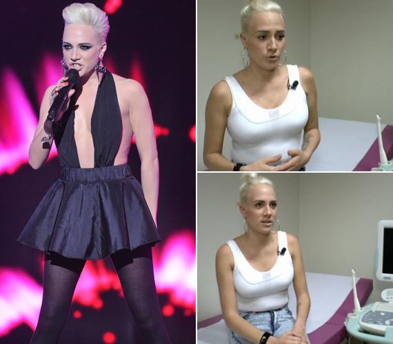 A különbség szemmel látható: Tóth Gabi az idei Eurovíziós Dalfesztivál hazai válogatóján villantotta meg dekoltázsát, amely jóval laposabb volt, mint amilyen a műtét után lett.
