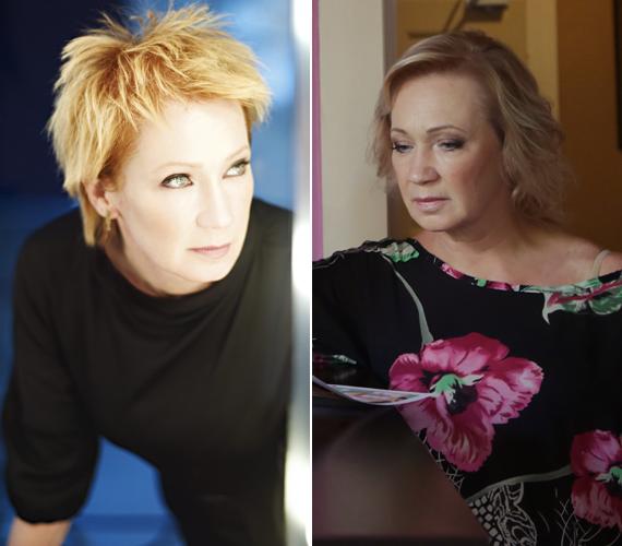 A színésznő ultrahangos arclifting kezeléssel fiatalítja arcát, mely csupán pár óráig tart és az eredmény jól látható.