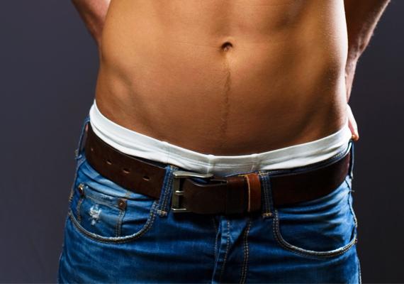 Kilógó alsónadrág                         A divatos farmer alól kilógó alsónadrág arról árulkodhat, hogy a férfi igyekszik a laza, szexi macsó benyomását kelteni a nőkben. Kevesen gondolnak bele, hogy ez nem feltétlenül tetszetős, inkább sok, és nem is feltétlenül laza, inkább görcsös, hiszen a szándékosság törekvést feltételez. Párkapcsolatban egy alsógatya-villantós férfi hajlamos lehet több figyelmet fordítani magára, mint a párjára, és nem kizárt egy csipetnyi hűtlenségre való hajlam sem, hiszen neki fokozott szüksége lehet az ellenkező nem csodálatára.
