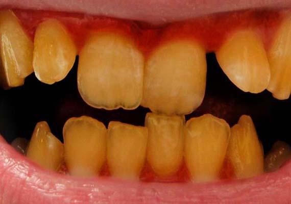 Ha valaki keveset nevet, annak a rossz fogak is lehetnek az okozói. Taszító, ha a férfi nem tartja tisztán fogait, nem jár fogorvoshoz, illetve nem teteti rendbe szanaszét álló fogsorát.