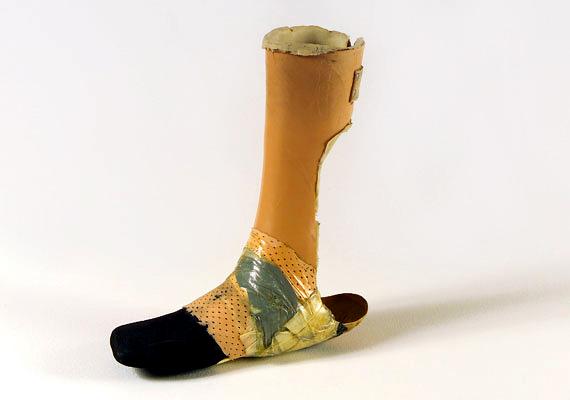 A zágrábi kórház szociális munkása részt vett e lábszárprotézis elkészítésében, melynek tulajdonosával egymásba szerettek. A protézis tovább tartott, mint a kapcsolatuk.