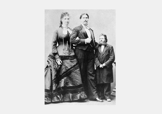 Az eddigi legnagyobb vaginával rendelkező nő Anna Swan volt, akinek más testrészei is átlag felettiek voltak. Még szerencse, hogy talált magához való udvarlót.