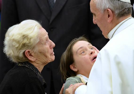 Ferenc pápa az UNITALSI, vagyis az Olasz Betegkísérők Egyesületének találkozóján áldotta meg a Down-kóros lányt.