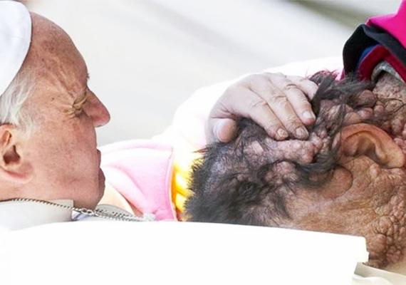 Nem feledkezik meg azokról sem, akiket esetleg hátrányos megkülönböztetés ér a külsejük miatt. A fotó az egyik általános audiencia során készült a Szent Péter téren, a pápa megáldotta a neurofibromatózisban szenvedő férfit. Ez egy ritka betegség, melyben a betegek idővel elveszítik látásukat és hallásukat, valamint szív- és érrendszeri problémákkal is küzdenek.