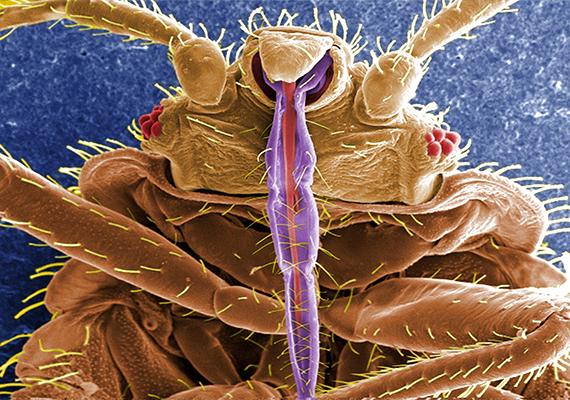 Így néz ki az ágyi poloska sokszoros nagyításban. Az egyik legkellemetlenebb oka jelenlétének, hogy táplálékát az emberi vér jelenti: a nappal rejtőzködő életmódot folytató rovar éjszaka keresi meg áldozatát, annak hő- és szén-dioxid-kibocsátása alapján.