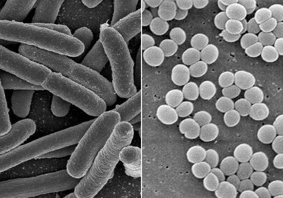 A fogkefén és környékén olyan baktériumok is elszaporodhatnak, mint az E.coli - balra -, mely emésztő- és kiválasztó rendszeri betegségeket okozhat, valamint a Staphylococcus - jobbra -, mely gyulladásos folyamatokat idézhet elő a szervezetben. Kattints ide, és tudd meg, még milyen baktériumokkal kell vigyáznod!