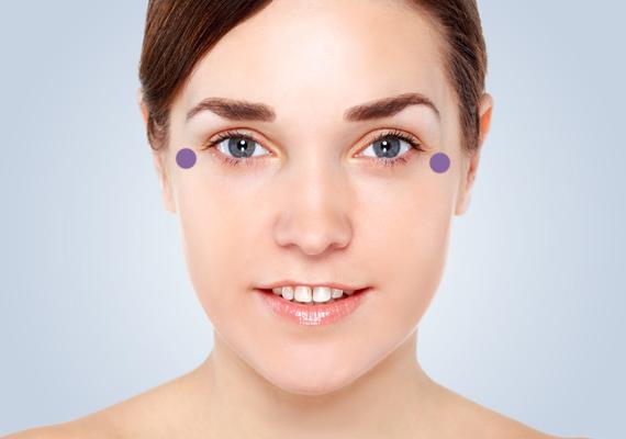 Óvatos mozdulatokkal csapkodd a bőrt a megjelölt pontokon, így ellazulnak a szem körüli izmok, amivel a már látható szarkalábakat halványíthatod.