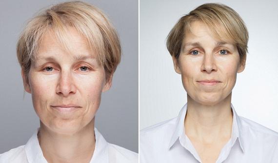 Az orvosok pontos magyarázattal is szolgáltak a látványos változásra, amely a hormonokkal áll szoros összefüggésben. Először is alváshiányos állapotban megnő a kortizol nevű stresszhormon szintje, ez felelős a feszültségért és részben a ráncok mélyüléséért. Ugyancsak fontos, hogy ilyenkor csökken a szervezet melatoninszintje, mely hormon a bőr megújulásáért, gyógyulásért lenne felelős. Eközben a faggyúmirigyek termelése megnő, ami további bőrproblémák kialakulásához vezet. Az állapotot huzamos ideig tartó, megfelelő mennyiségű alvással lehet megszüntetni.
