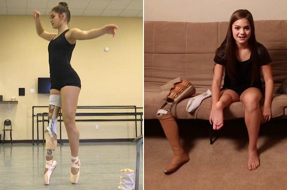 Gabi Shullt kilencévesen diagnosztizálták csontrákkal, melyet végül csak a kislány jobb lábának részleges amputációjával sikerült megállítani. Gabi a műtét után mindent ott folytatott, ahol abbahagyta: újra megtanulni táncolni, sőt, különleges műlába a gördeszkázást, sziklamászást és más sportokat is lehetővé teszi számára. Inspiráló táncos videóját már több mint kétszázezren látták.