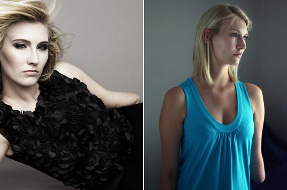 Kelly Knox Anglia talán legkiemelkedőbb sérült modellje, aki bal kar nélkül született. Kelly saját elmondása szerint hétéves kora óta nem hajlandó protézist hordani. A modell a változatos szépség szószólója, ám emellett komoly jótékonysági tevékenységet is folytat, többek között az aknabalesetek sérültjei számára.