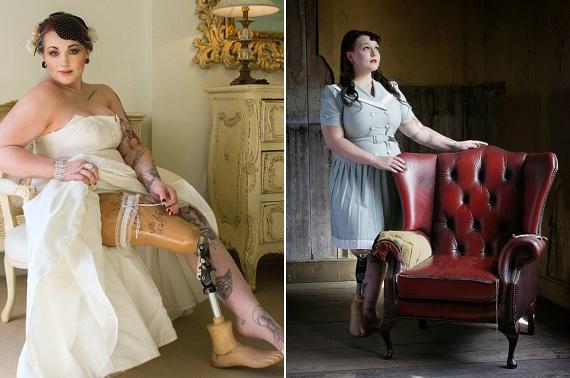 Taylor Crisp femur fibula ulna szindrómával született, melynek következtében lába deformálódott, és a lány 15 éves korában amputálni kellett. Taylort társai falábúnak csúfolták, mégis sikerült összegyűjtenie annyi önbizalmat, hogy egy modellügynökséggel felvegye a kapcsolatot. Azóta rendszeresen kérik fel esküvői ruhák, fehérneműk és extravagáns darabok reklámarcának. Taylor szeretné, ha mottóját minél többen éreznék sajátjuknak: nem kell tökéletesnek lennem ahhoz, hogy nagyszerű dolgokat csináljak.