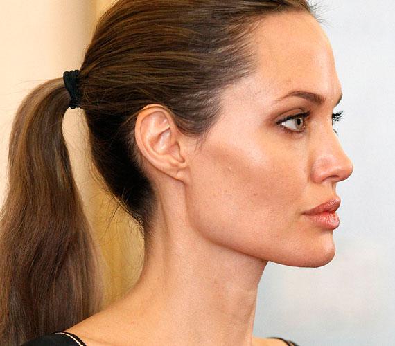 Angelina Jolie ügyesen alkalmazza a különböző technikákat, így a botoxot is, arca természetes maradt, csupán nem öregszik olyan ütemben, ahogy azt a természet diktálná.