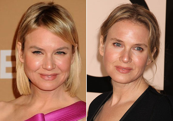 Szegény Renée Zellweger arca ugyan megőrizte feszességét, azonban teljesen elvesztette karakterét, köszönhetően a túlzásba vitt plasztikai sebészetnek.