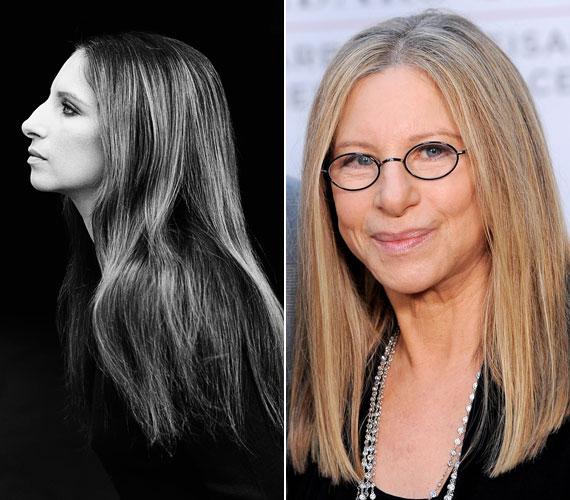 Barbra Streisandot rengetegen csúfolták az orra miatt annak idején, pedig ez adja az arca karakterét. A színésznő ma is remekül fest.